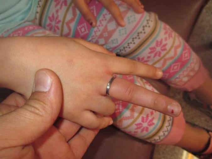 انگشتری که موجب تورم درانگشت دست دختر بچه ای شش ساله شده بود توسط آتش نشانان رهاسازی شد