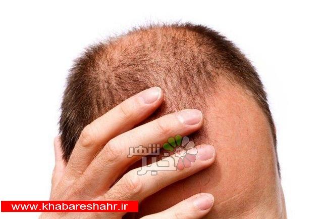 امیدی جدید برای درمان ریزش مو/ رشد دوباره مو با کمک نور LED