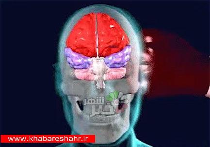 توسعه مدل مجازی مغز انسان برای تخمین آسیبهای مغزی