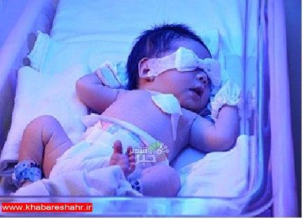 تشخیص زردی نوزادان و اختلالات کبدی در کمتر از 10 دقیقه با راهکار محققان کشور