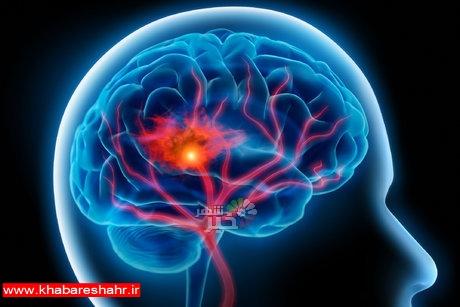 امید جدید در درمان سکته مغزی